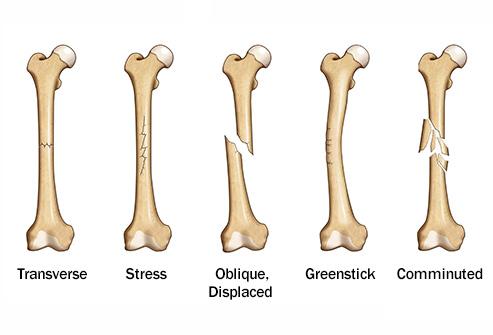 درمان شکستگی استخوان