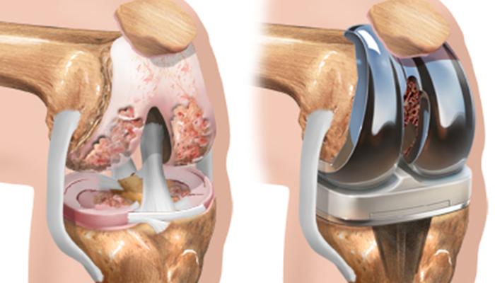 جراحی تعویض مفصل زانو توسط بهترین متخصص ارتوپدی در اصفهان