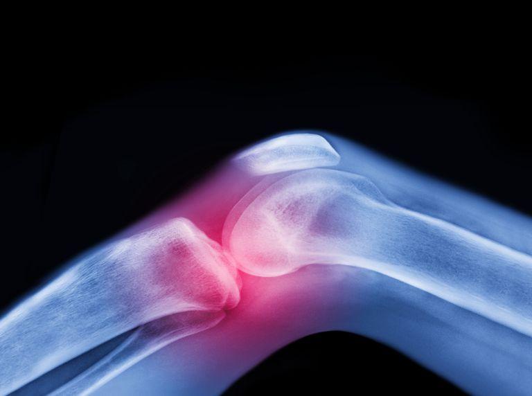 احتمال عفونت بعد از جراحی تعویض مفصل زانو پزشک متخصص ارتوپدی