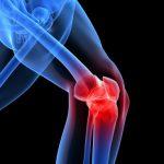 پیشگیری از درد زانو متخصص ارتوپدی تعویض مفصل زانو
